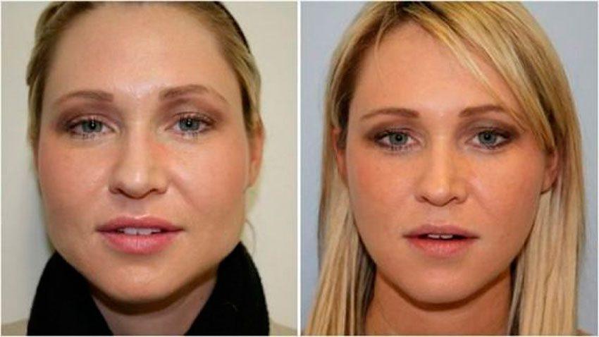 Как Подростку Похудеть В Лице. Как избавиться от жира на лице? 3 лучших способа похудеть в лице